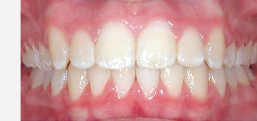 nos sourires orthodontistes vaudreuil la clinique d 39 orthodontie sp cialis e. Black Bedroom Furniture Sets. Home Design Ideas